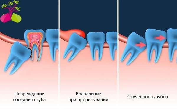 Зуб мудрости растет и болит десна — Способы устранения зубной боли и таблица препаратов, советы врачей