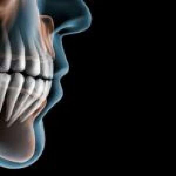 Зуб мудрости