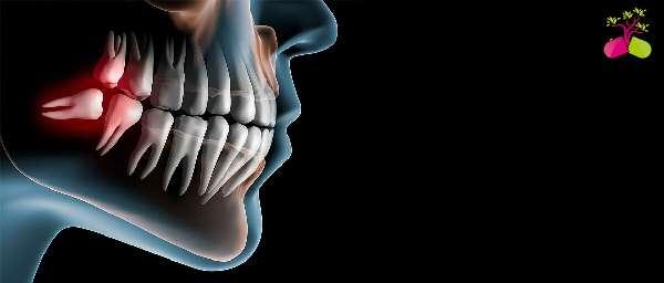 Может ли болеть зуб мудрости когда растет