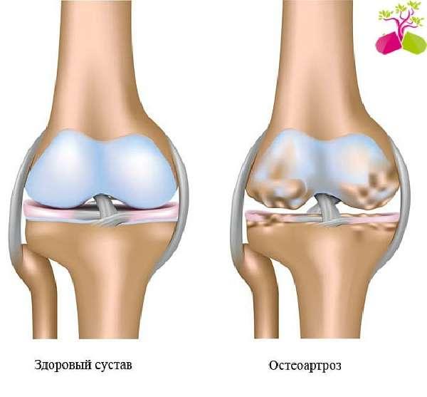 Изображение - Болят суставы рук и ног что делать Osteoartroz_kolena_medboli_51-min