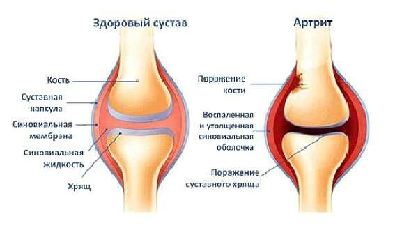 Изображение - Болят суставы рук и ног что делать artrit_medboli_52-min