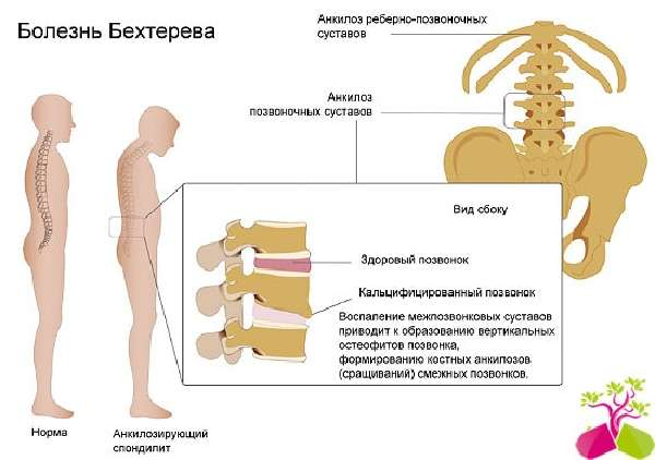 Изображение - Болят суставы рук и ног что делать bolezn_behtereva_medboli_54-min