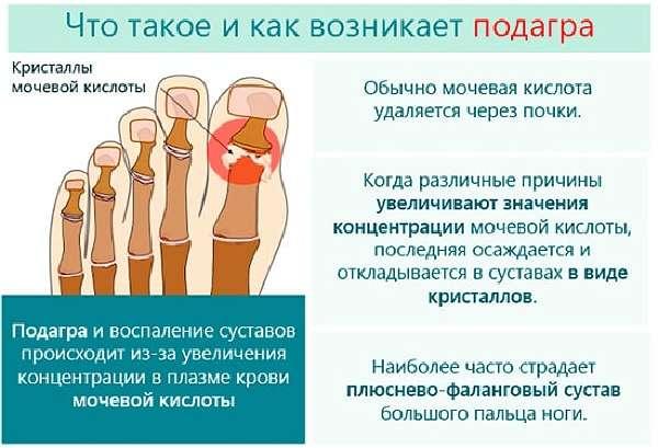 Изображение - Болят суставы рук и ног что делать podagra_medboli_53-min