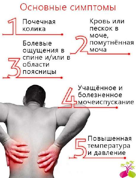 Почечные колики симптомы лечение в домашних условиях