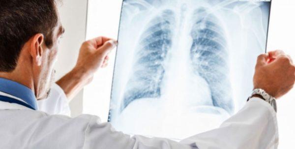 Рентген-снимок при бронхите необходим в первую очередь