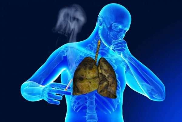 Курение выступает провокатором развития осложнений