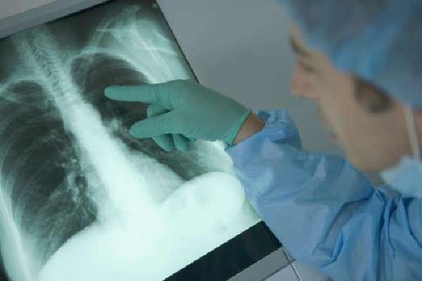 Многие осложнения можно обнаружить с помощью проведения рентгена