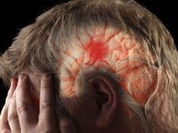 Пошаговые действия медиков при инсульте