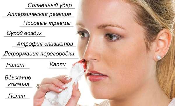 причины крови из носа