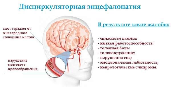 энцефалопатия схема развития