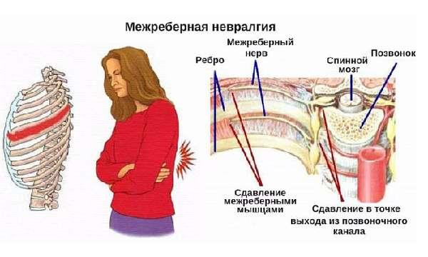 Невралгия под правой лопаткой симптомы и лечение
