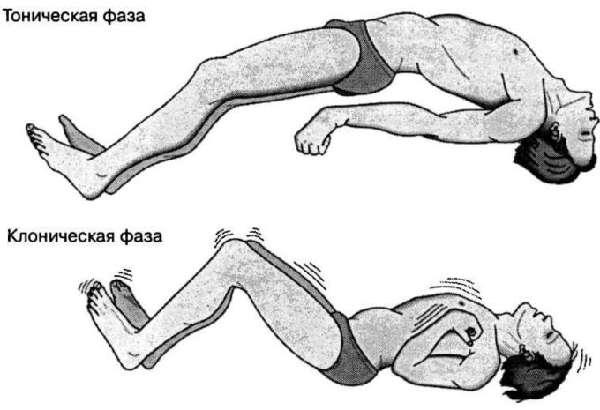мышечные судороги симптомы