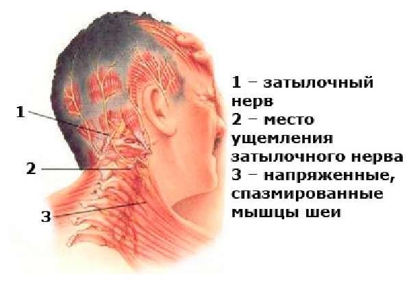 Невралгия левого затылочного нерва