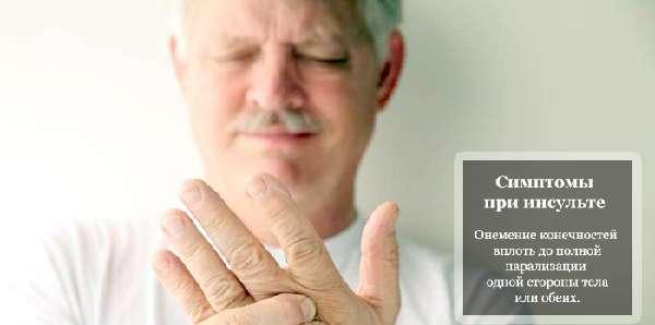 Онемение руки при инсульте