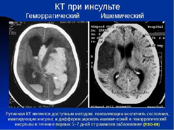 Снимок головного мозга с ишемическим инсультом