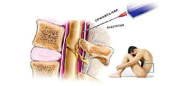 spinalnaya-anesteziya