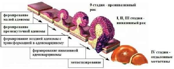 Классификация опухолей