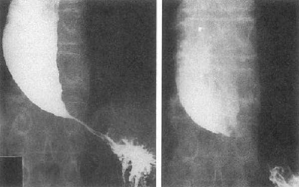 Рентген ахалазии пищевода