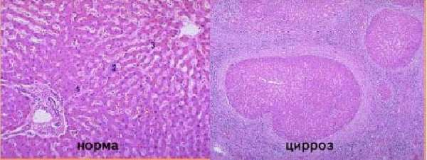 Гистология цирроза печени