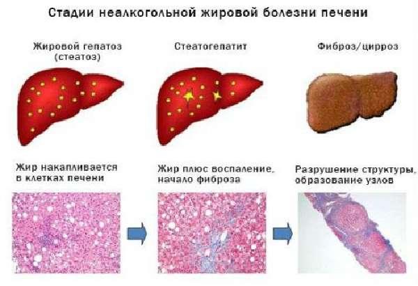 Неалкогольная жировая болезнь
