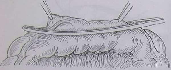 Наложение кишечного жома