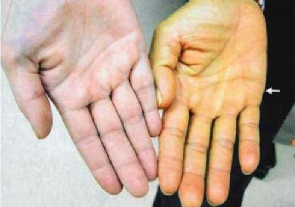 Желтушность кожи