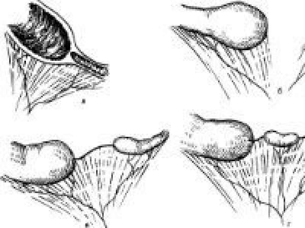 Атрезия кишечника