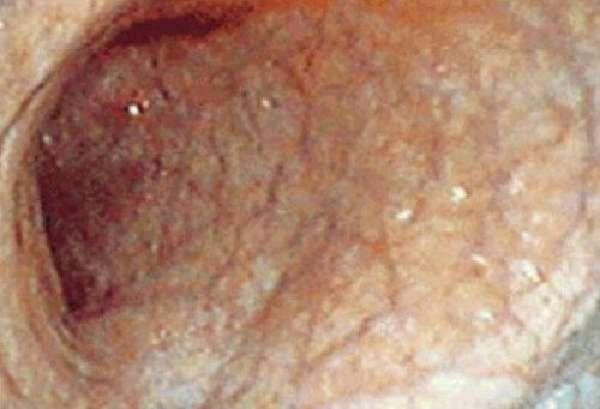 Атрофированная слизистая оболочка желудка
