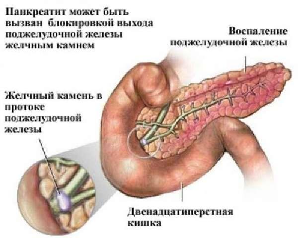 Панкреатит от блокировки хода камнем