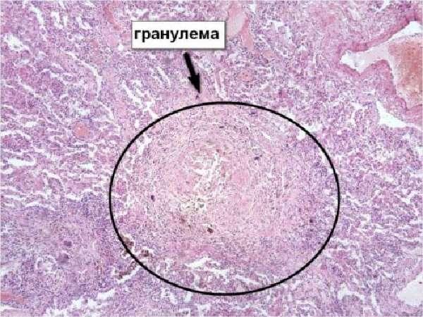 Гранулема при болезни Крона