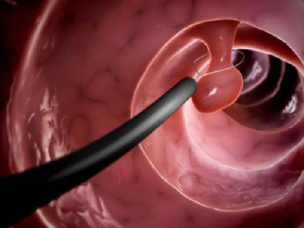 Удаление полипов в кишечнике