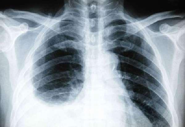 Плеврит на рентгене