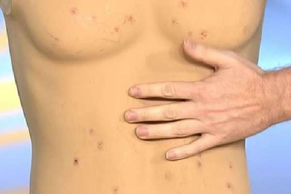 Сыпь на коже при брюшном тифе