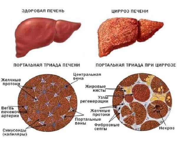 Изменения при циррозе печени