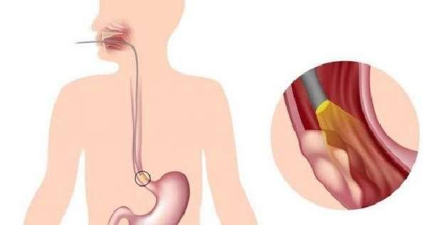 Эндоскопия пищевода