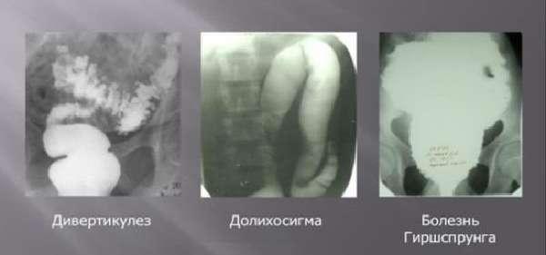 Долихосигма на рентгене