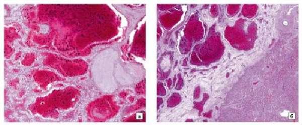 Гистология гемангиомы