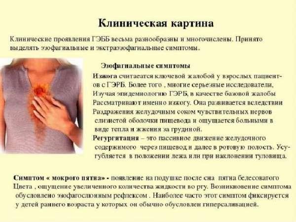 Симптомы ГЭРБ