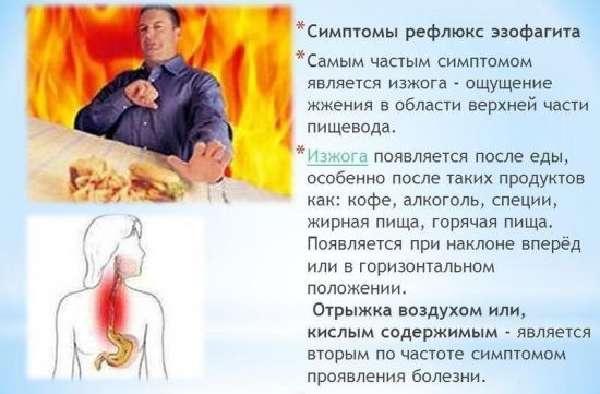 Симптомы рефлюкс-эзофагита