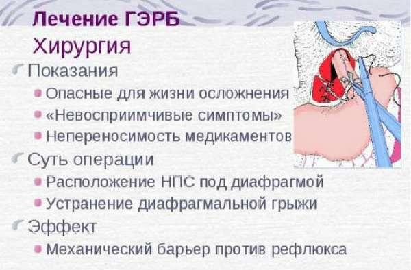 Хирургия ГЭРБ