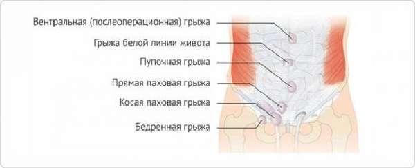 Грыжа кишечника у мужчин симптомы