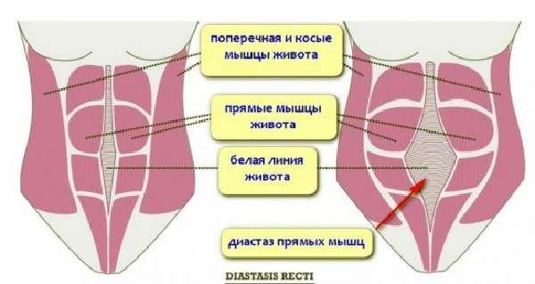 Диастаз мышцживота