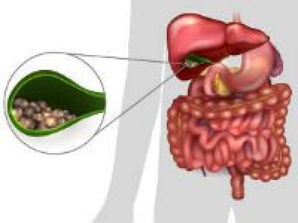 Калькулезный холецистит