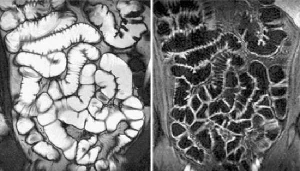 МРТ кишечника с контрастом