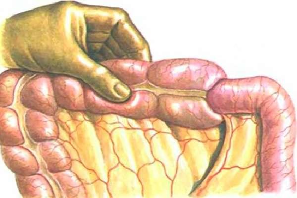Непроходимость кишечника у пожилых людей: причины и лечение