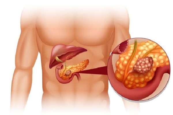 Опухоль в поджелудочной