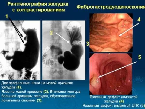 Диагностика язвы желудка