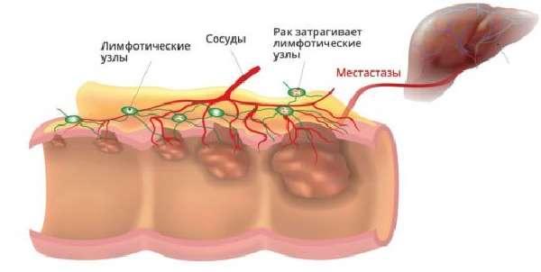Опухоль кишечника