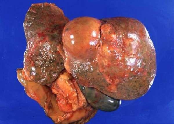 Фиброламеллярная карцинома печени