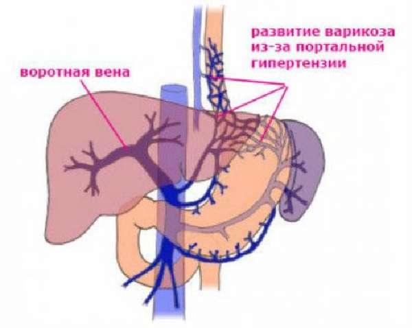 Варикоз при портальной гипертензии